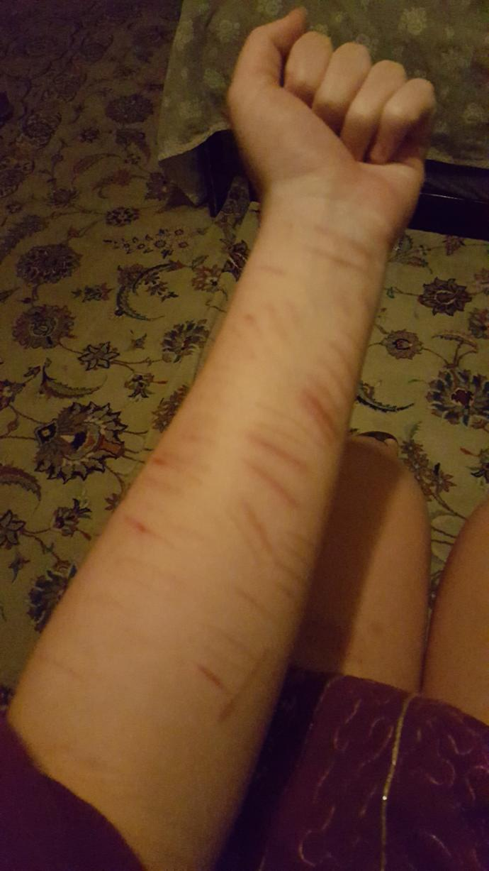 Would you not date a woman with scars like these?