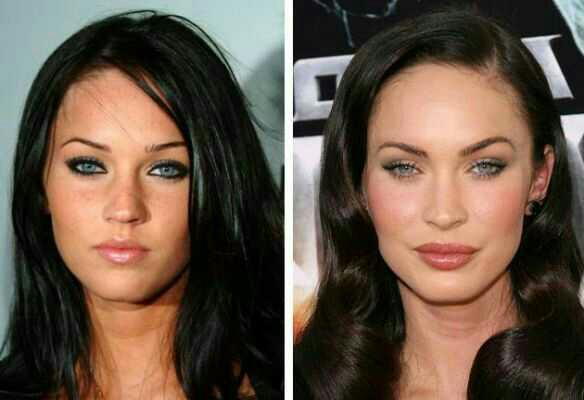 What do you think about lip fillers?