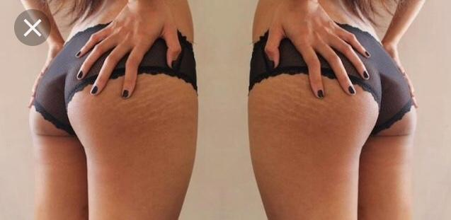 Are stretch marks a turn off? Please be honest?