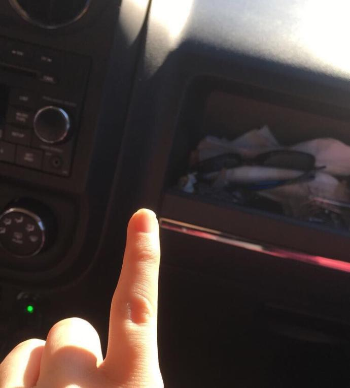Do You Have A Crooked Pinkie/Pinkies?