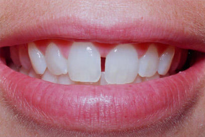 Do you have spaces in your teeth? Do you need to go to the dentist?