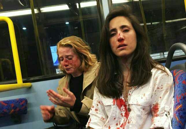 Lesbian couple beaten up for refusing to kiss for men's entertainment. Opinions?