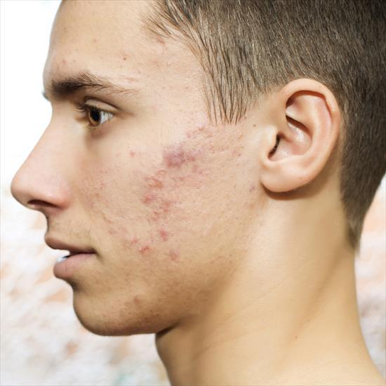 White people, would you rather be bald or have moderate acne (both permanently)?