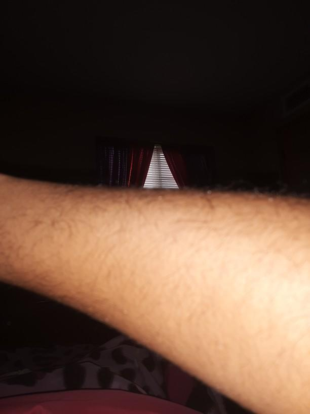 Would you date a girl that has hairy arms?