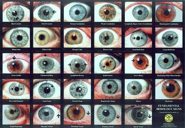 What's your natural eye color?