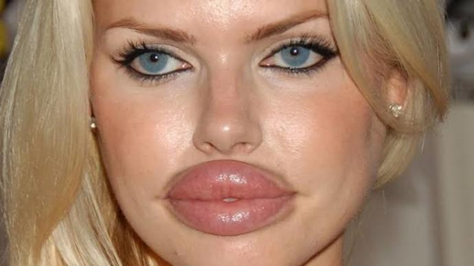 Is it a prolapsed rectum on her face? Did a bee stung her lips?