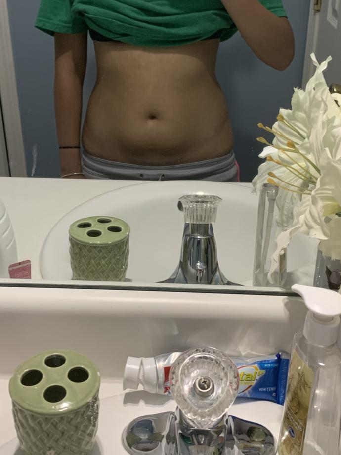 Can you get rid of a belly pouch?