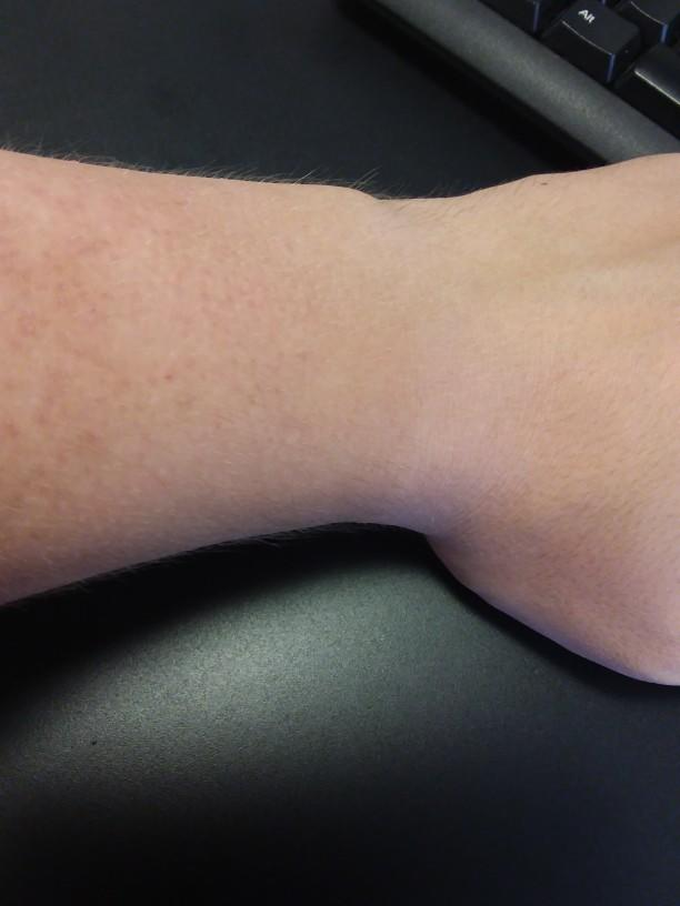Should I get wrist surgery or is it over?
