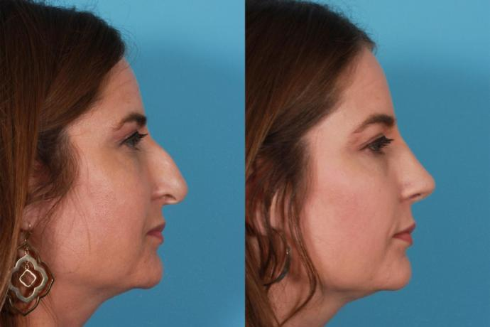 What is your opinion on rhinoplasty (nose job)?