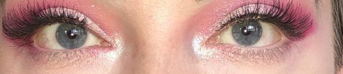 Does the white of my eye look yellow?