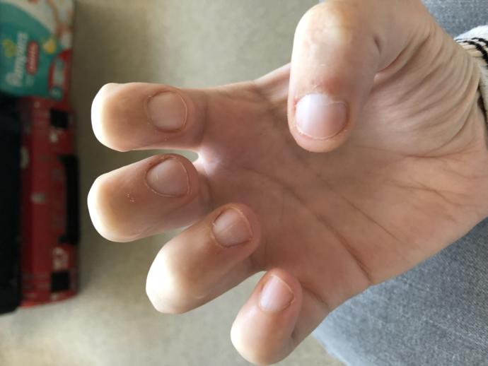 Why do my cuticles do this?