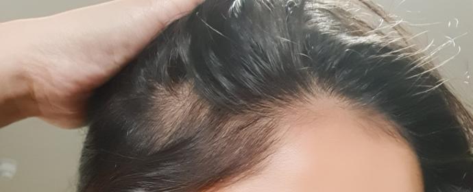 Am I going bald? Hair loss?