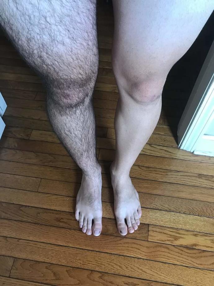 Men removing leg and arm hair?