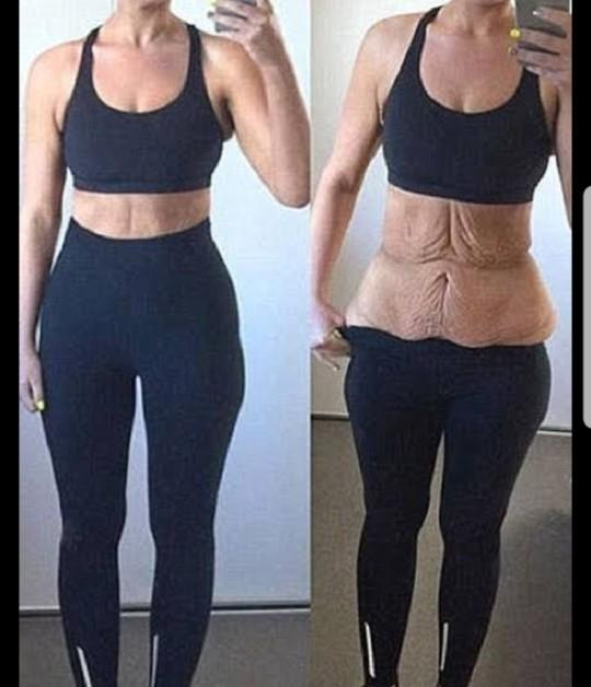 Would I get loose skin if I lose 20kg/45lbs?