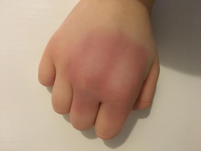 Is my knuckle broken or just bruised?