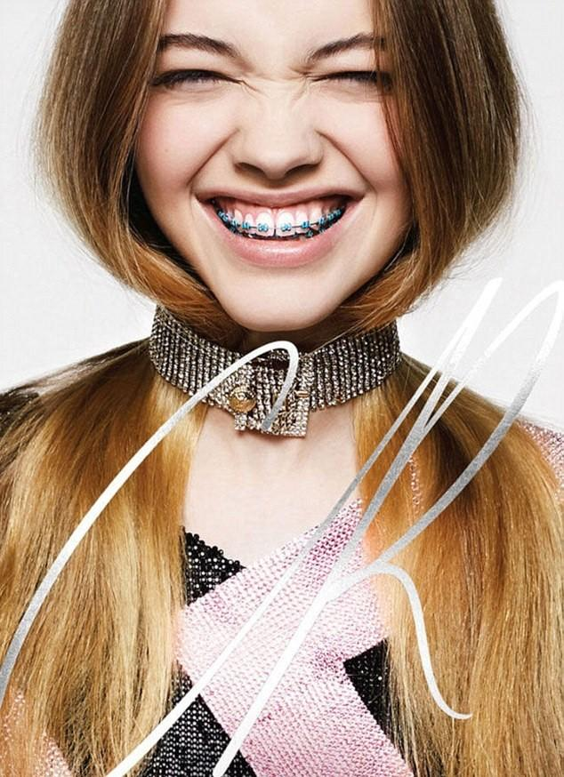 Do you consider orthodontic braces attractive on those 18+?