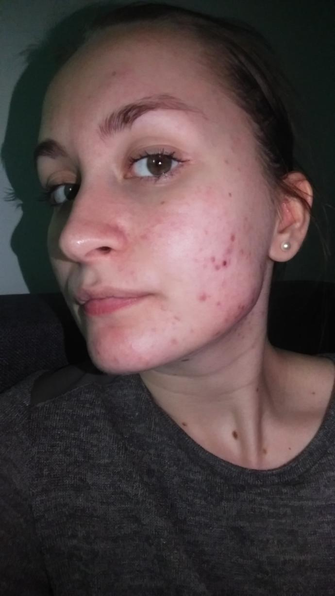 Do you think that girls with acne should never go out in public without makeup?