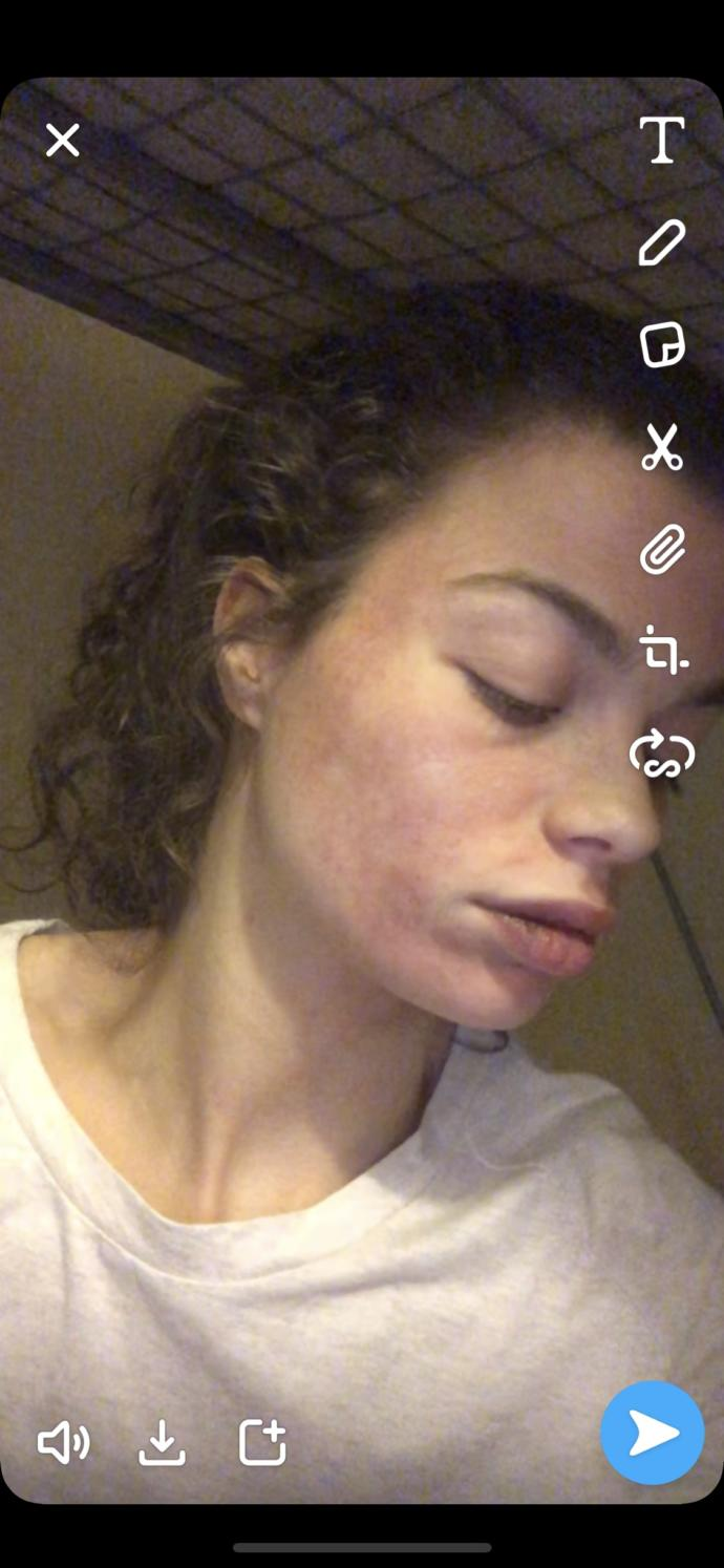 What are these blotchy red marks on my face?