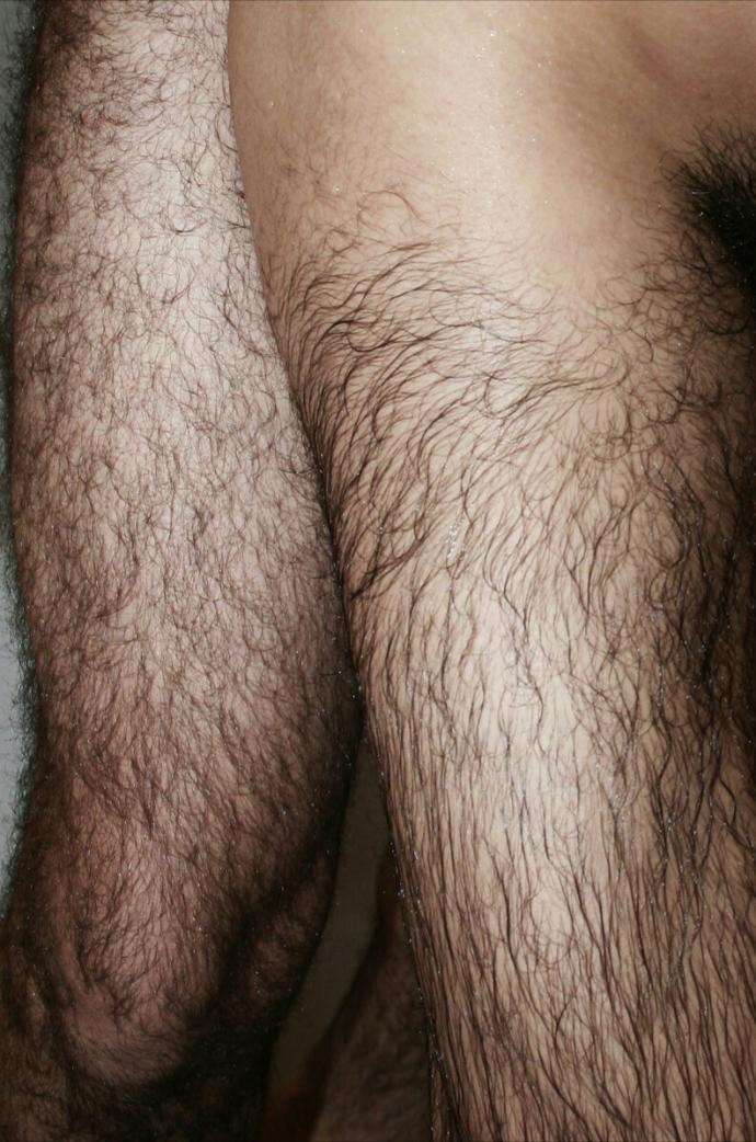 Why can men have hairy legs and still women prefer it?