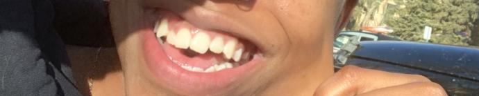 Do guys notice/care when a girl has crooked teeth?
