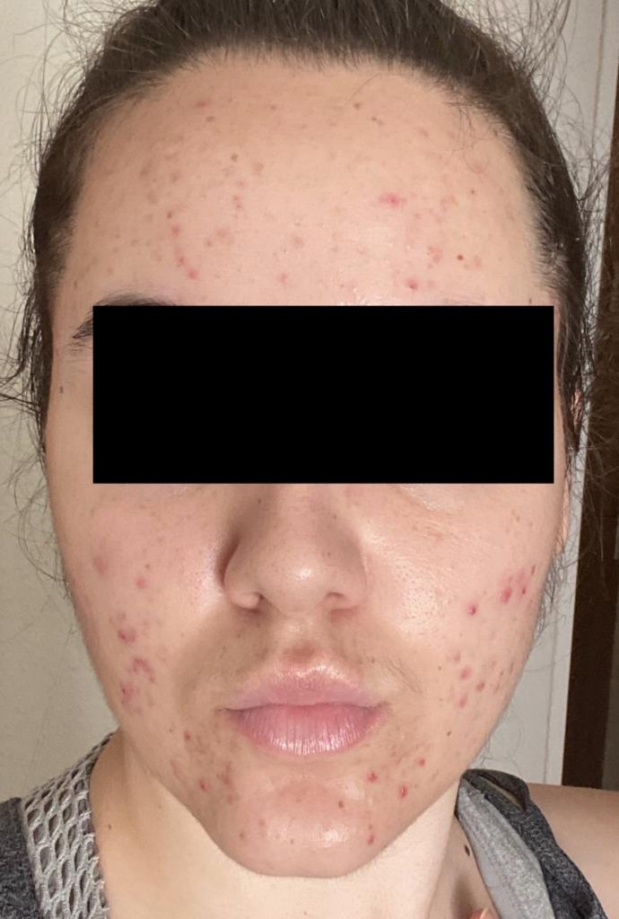 PLEASE help me with my skin?