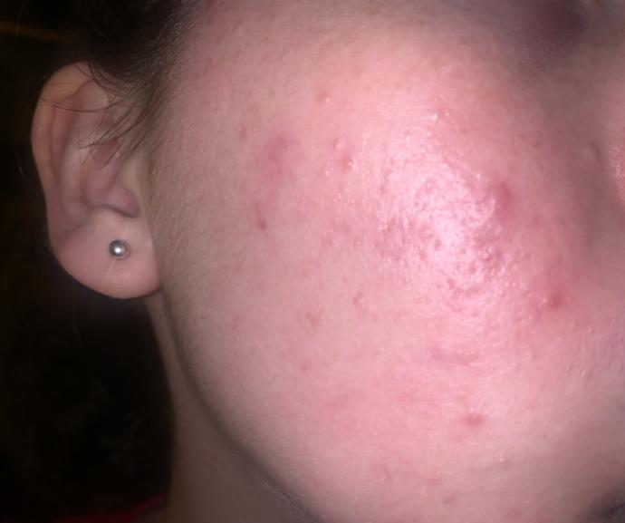 Is this acne, pimples, or scarring?