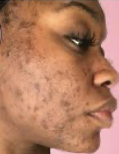 Guys, White men -if u went to a PLATONIC hobbygroup + met a woman with this skin-would u blank her + only talk 2 white women w clear skin/ good looks?