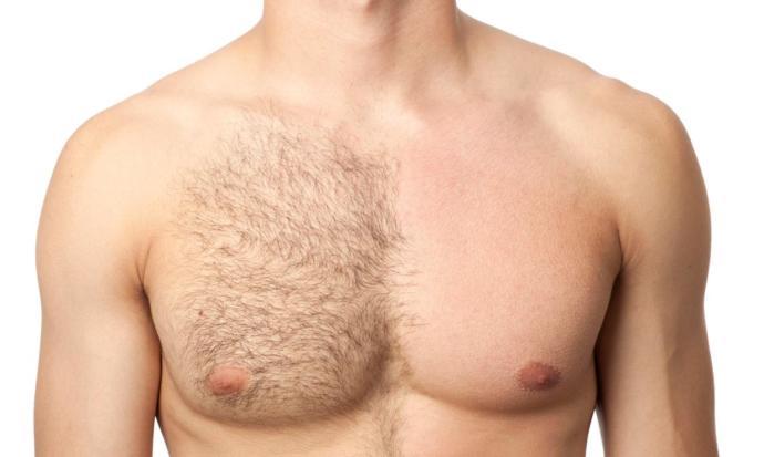 Body hair on boys. Yay or nay?