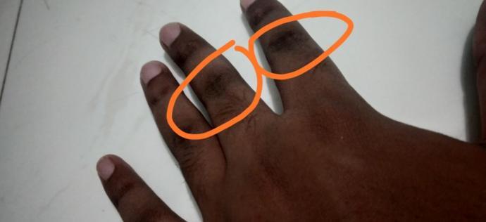 Should I use bleach to get rid of these dark skin tone?