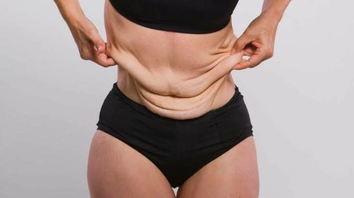 Will I get loose skin if I lose 30kg?