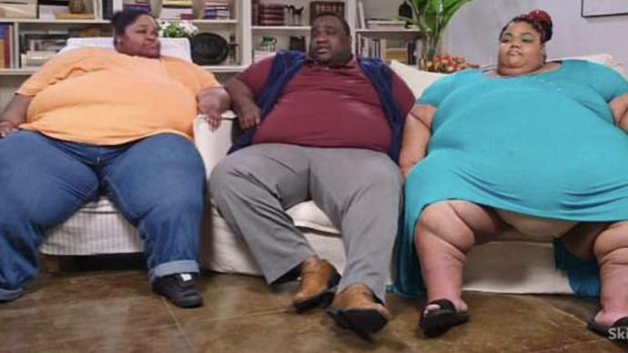 Is obesity a big problem in America or does world media exaggerate it?