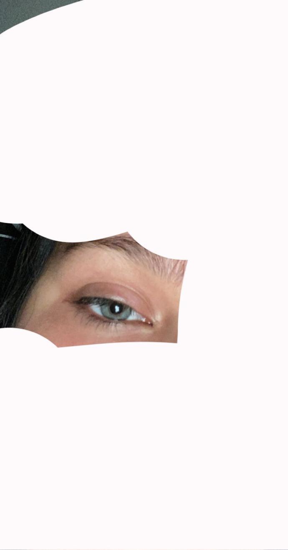 Eyelid got puffy for no reason?