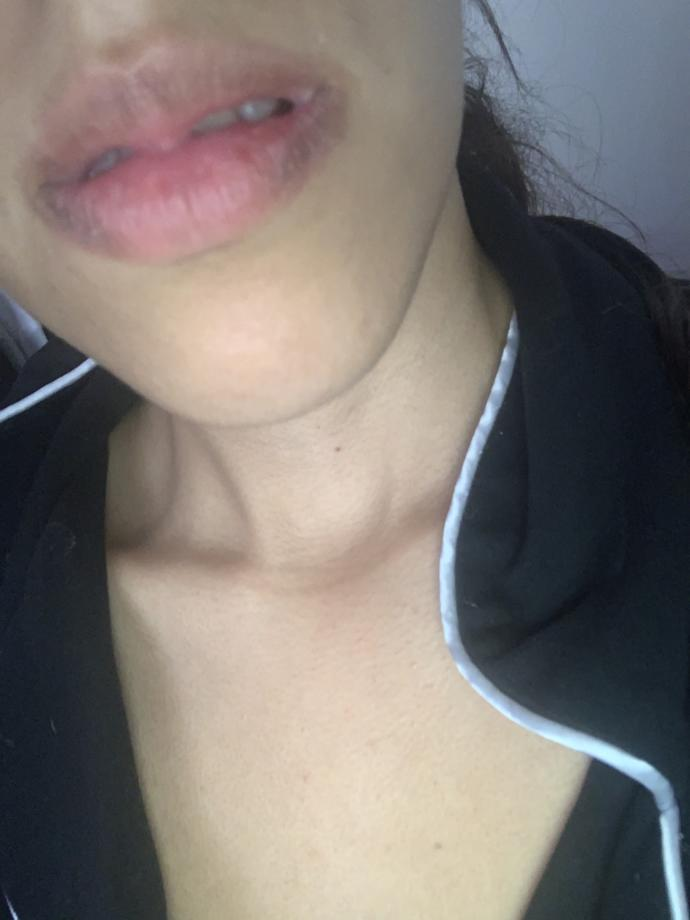 Why are my lips purple and cracked very dry help?