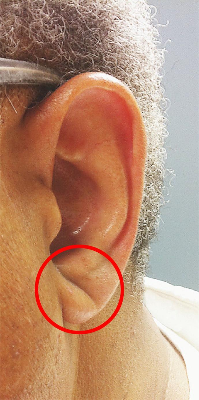 Do you have this ear crease?
