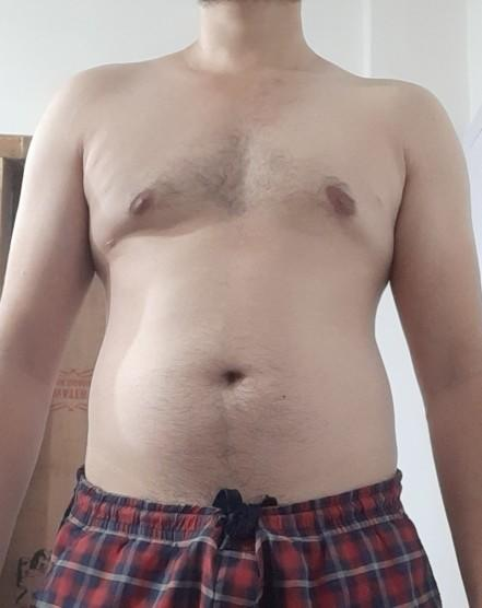 Is this Gynecomastia? Or normal chest?
