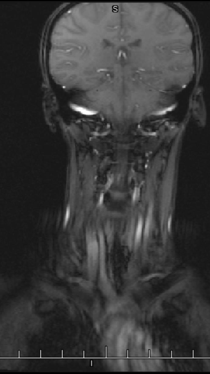 Is there anything weird about this MRI?