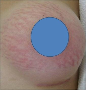 Would you date/marry a girl who had stretch marks on her body?