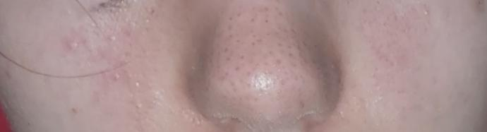 How can I start to accept my ugly skin?