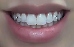 Should I get a tooth gem?