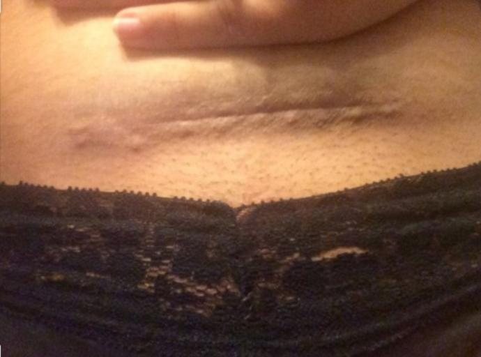 A mothers battle scares; stretch marks & C section scars How do you feel about it? Men do you give it much thought? Women do you still feel sexy?