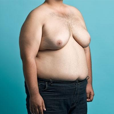 Ladies would you date a man that has gynecomastia?