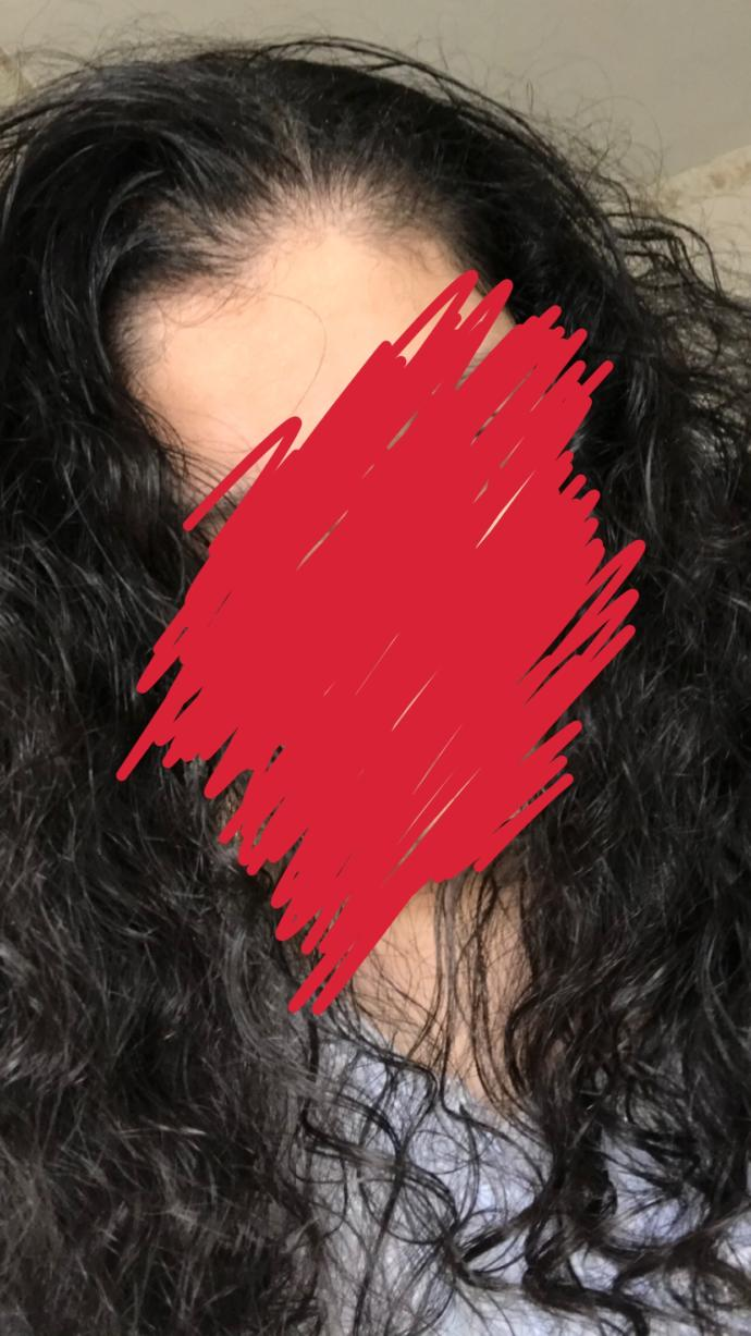 What to do with my bushy, brittle and half oily hair?