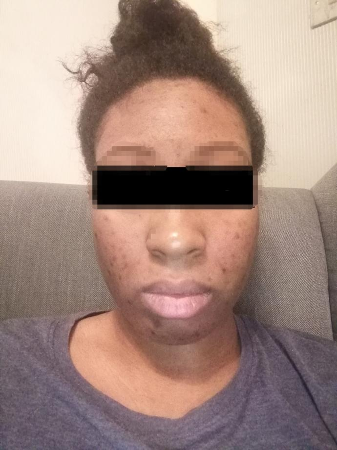 Do you suffer from hyperpigmentation? *sensitive content *?