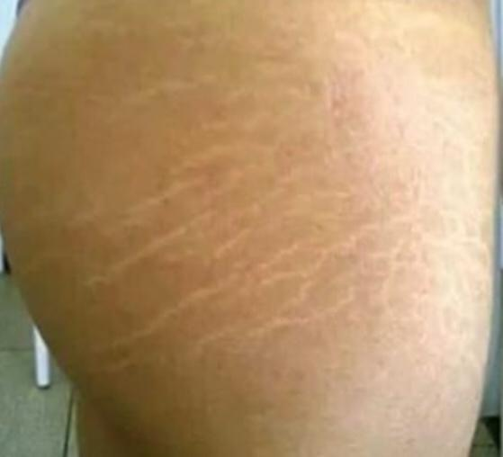 Do guys care about stretch marks?
