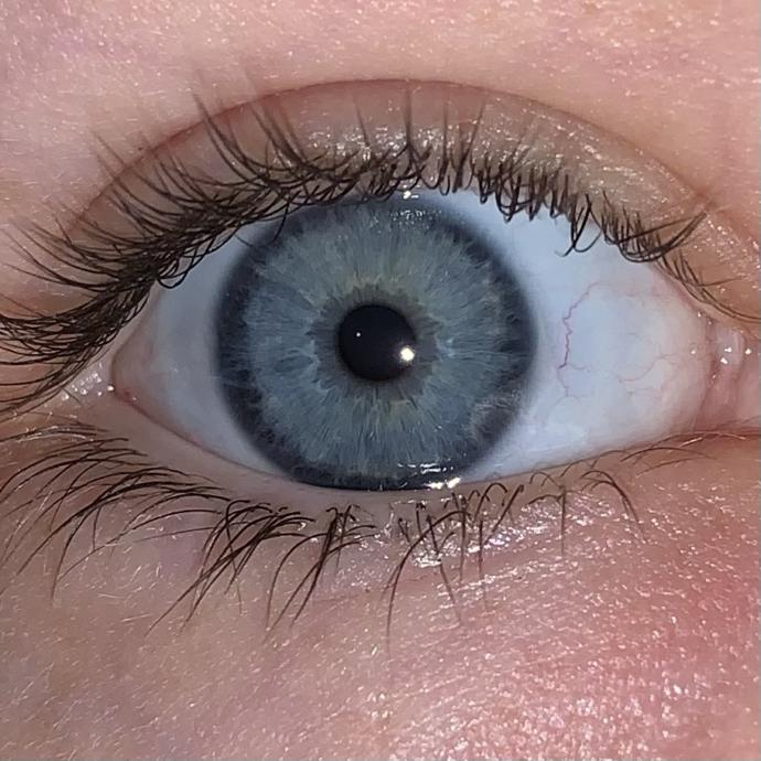Post Your Eyes To Make A GaG Eye Color Gallery?