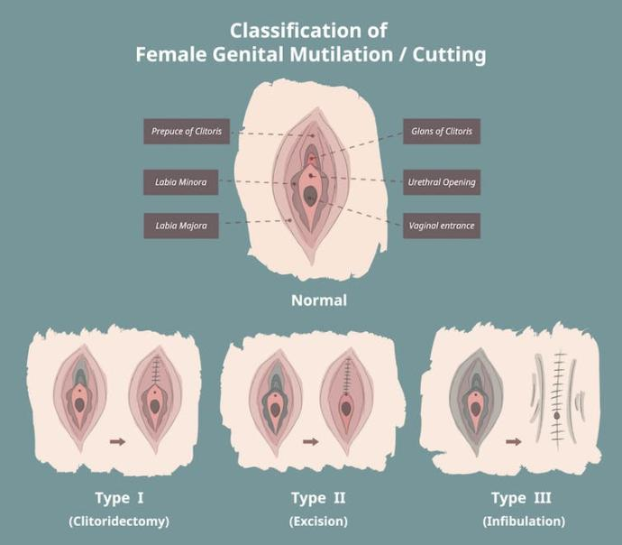 Is Female circumcision the same as male circumcision?