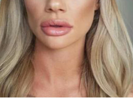 Men and women, do you find lip fillers attractive?