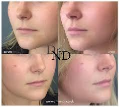 Do you find lip fillers attractive question for women and men?