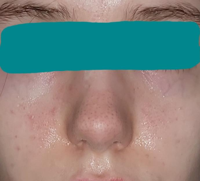 I have naturally enlarged pores. What can I do to stop them from growing?