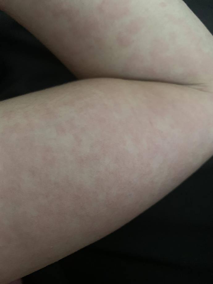 What is this allergy reaction ( pic) ?